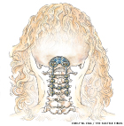 Cervical Spinal fusion illustration